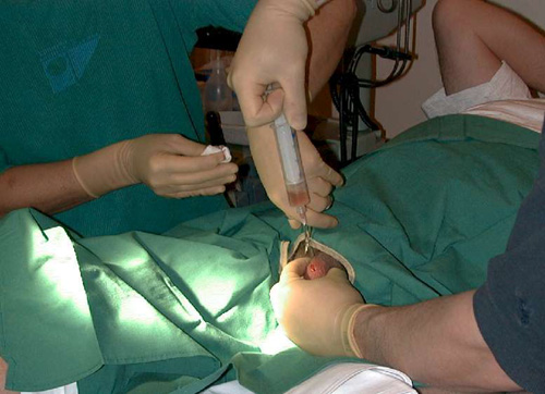 Забот спермы фото фото 758-571